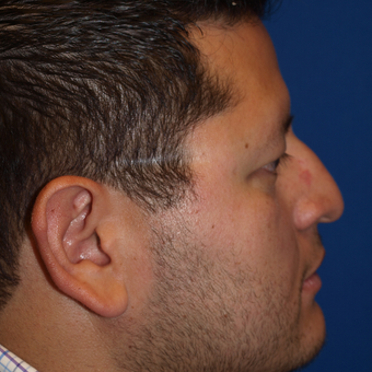 35-44 year old man treated with Rhinoplasty before 3326250