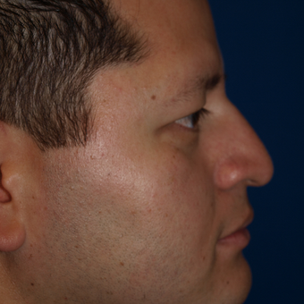 35-44 year old man treated with Rhinoplasty after 3326250