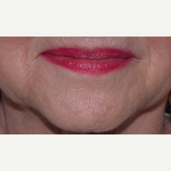 65-74 year old woman treated with Voluma for Marionette Lines after 2951336