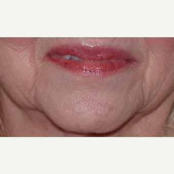 65-74 year old woman treated with Voluma for Marionette Lines before 2951336