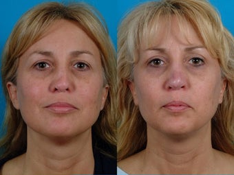 40-year-old woman treated with Rhinoplasty. before 3287911