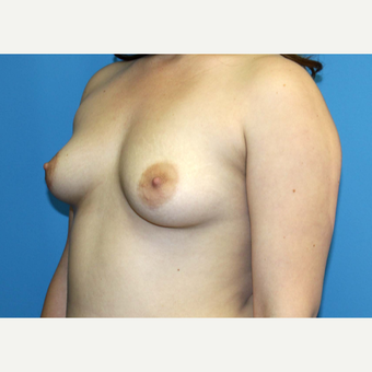 18-24 year old woman treated with Breast Augmentation before 3371115