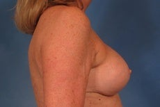 Breast Lift after 923941