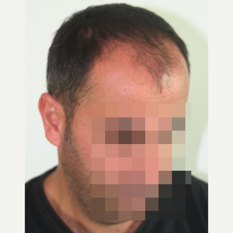 45-54 year old man treated with FUE Hair Transplant before 3210924