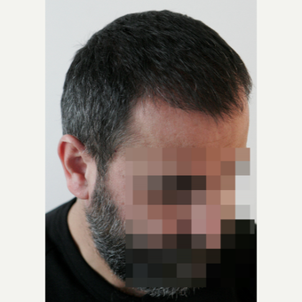 45-54 year old man treated with FUE Hair Transplant after 3210924