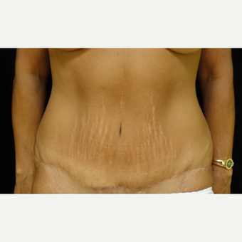 45-54 year old woman treated with Tummy Tuck after 3405700