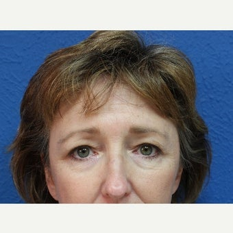 55-64 year old woman treated with Eyelid Surgery before 2254198