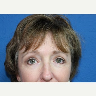 55-64 year old woman treated with Eyelid Surgery after 2254198