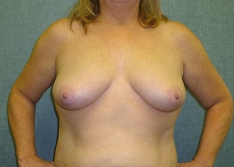 Breast augmentation with fat transfer before 607412