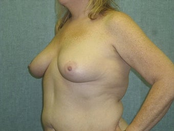 Breast augmentation with fat transfer 607412