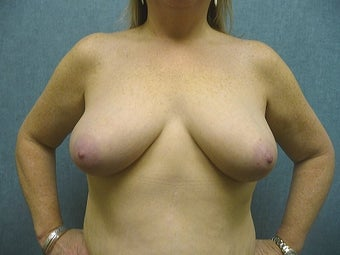 Breast augmentation with fat transfer after 607412
