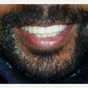 25-34 year old male treated with Smile Makeover after facial trauma accident after 3014537