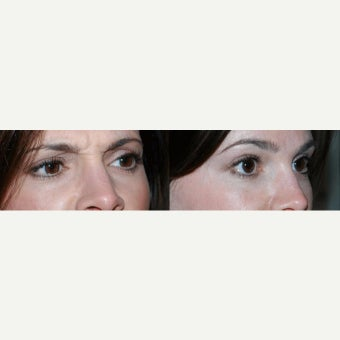 Botox to treat frown lines before 2096655