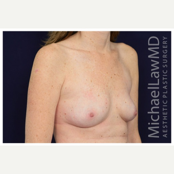 25-34 year old woman treated with Breast Implants after 3383483