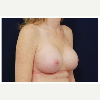 25-34 year old woman treated with Breast Implants before 3383483