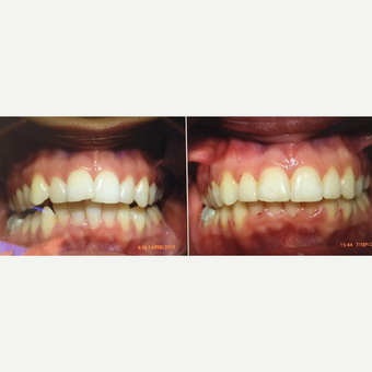 25-34 year old man treated with Braces