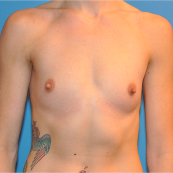 Breast Augmentation before 3207100