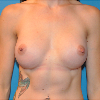 Breast Augmentation after 3207100