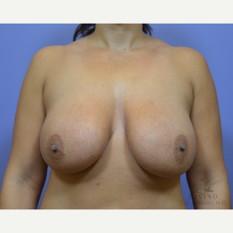 25-34 year old woman treated with Breast Lift with Implants before 3329420