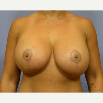 25-34 year old woman treated with Breast Lift with Implants after 3329420