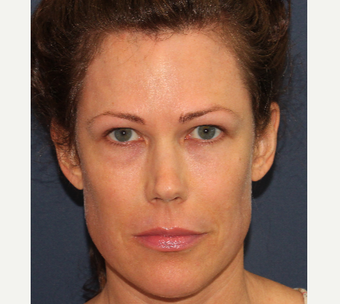 45-54 year old woman treated with Botox before 3769617