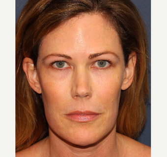 45-54 year old woman treated with Botox after 3769617