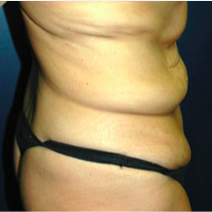 39 year old woman treated with Tummy Tuck before 3578417