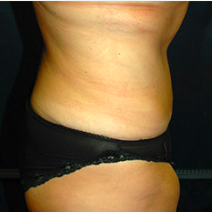39 year old woman treated with Tummy Tuck after 3578417