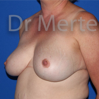 Breast Reduction after 3681194