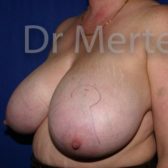 Breast Reduction before 3681194