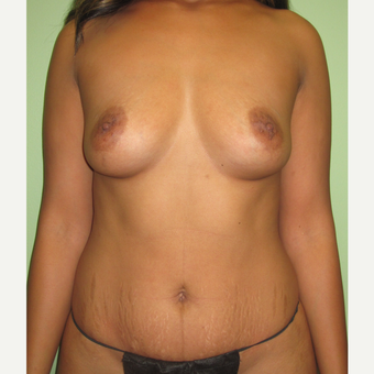 35-44 year old woman treated with Mommy Makeover before 3241915
