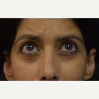 45-54 year old woman treated with Eye Bags Treatment after 3424396