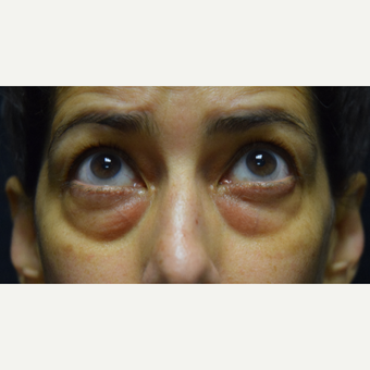 45-54 year old woman treated with Eye Bags Treatment before 3424396