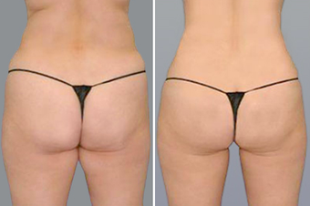 SmartLipo before 996915