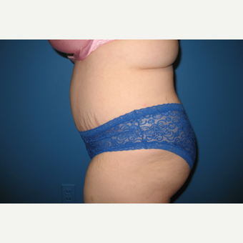 35-44 year old woman treated with Tummy Tuck after 3453616