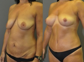 "Mastopexy and abdominoplasty - this patient had a ""mommy makeover"" with no breast implants used 1503778"