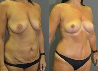 "Mastopexy and abdominoplasty - this patient had a ""mommy makeover"" with no breast implants used after 1503778"