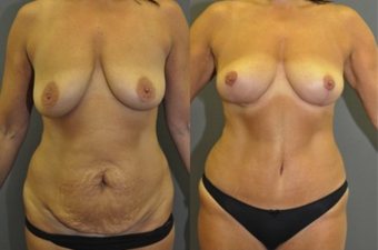 "Mastopexy and abdominoplasty - this patient had a ""mommy makeover"" with no breast implants used before 1503778"
