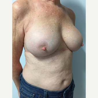 58 year old woman treated with Breast Implant Revision after 3585977