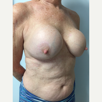 58 year old woman treated with Breast Implant Revision before 3585977