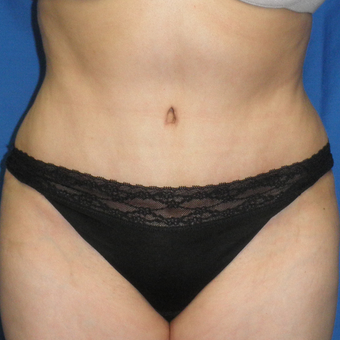 45-54 year old woman treated with Tummy Tuck after 3459208