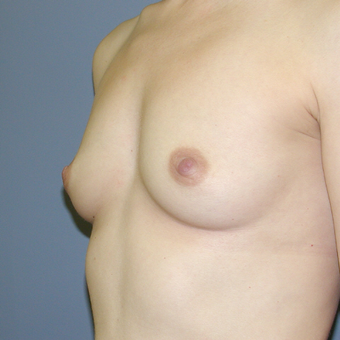25-34 year old woman treated with Breast Augmentation before 3042644