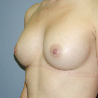 25-34 year old woman treated with Breast Augmentation after 3042644