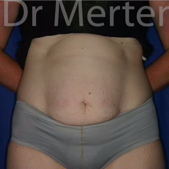 Tummy Tuck before 3599506