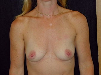 Breast augmentation before 293914