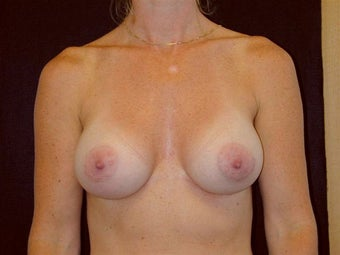 Breast augmentation after 293914