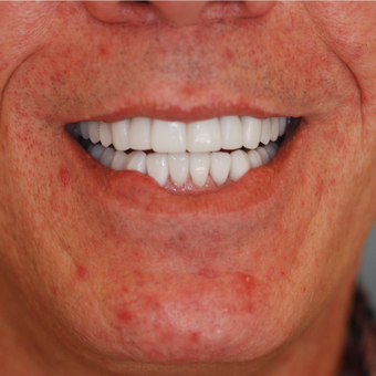 45-54 year old man treated with Smile Makeover after 3506914