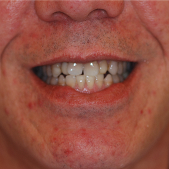 45-54 year old man treated with Smile Makeover before 3506914