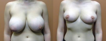 Breast Reduction before 972477