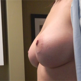 25-34 year old woman treated with Breast Lift with Implants after 2800172